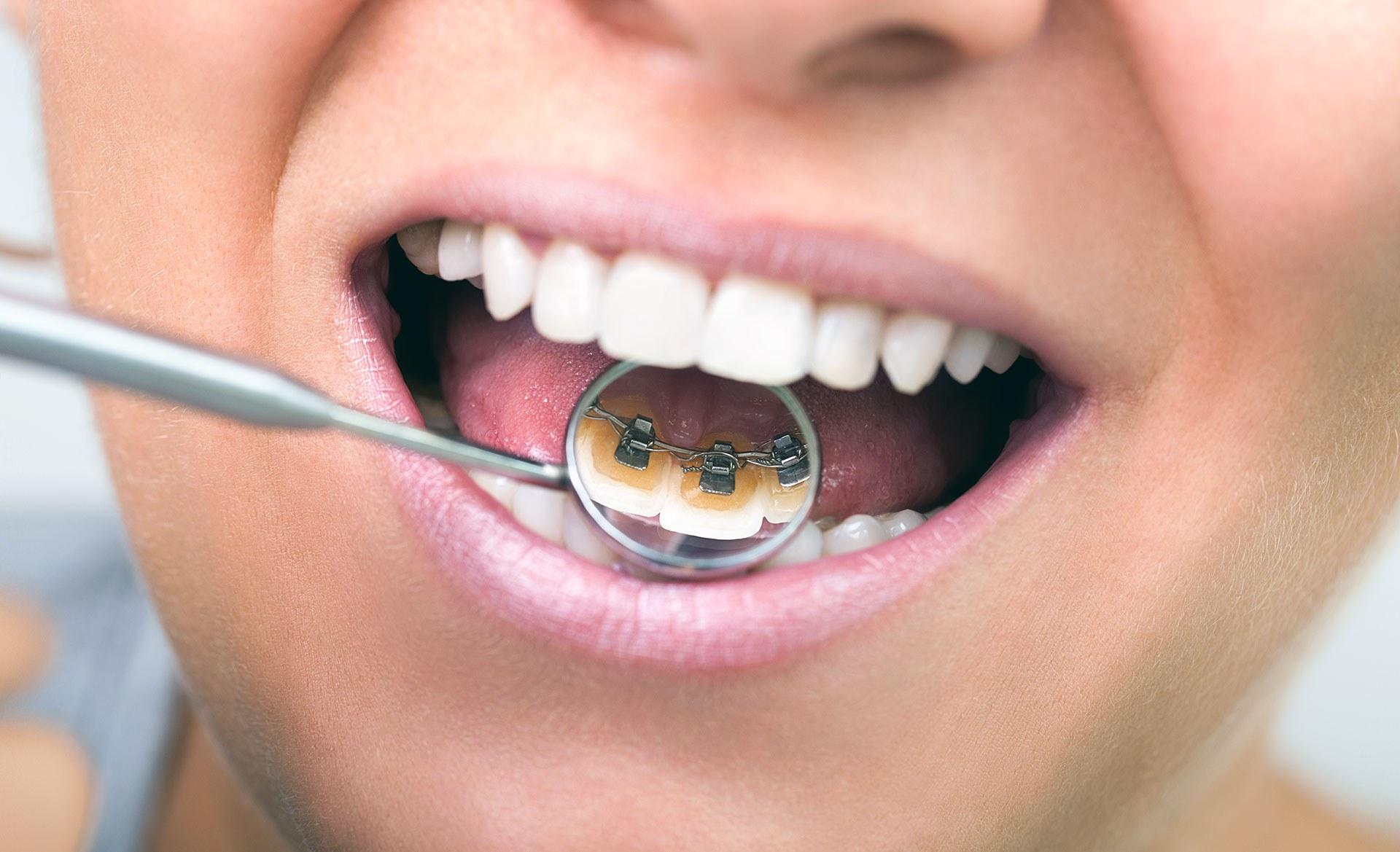 Ortodoncia lingual. Sonríe tu clínica dental en Barcelona