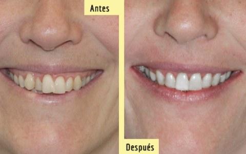 Antes y después de una intervención de extracciones de Premolares (cuatro piezas posteriores) y retracción con Microtornillos Óseos. Sonríe tu clínica dental en Barcelona