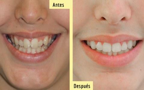 Antes y después de Ortodoncia Autoligado. Sonríe, tu clínica dental en Barcelona