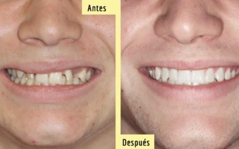Antes y después de intervención microquirúrgica y Ortodoncia Lingual. Sonríe tu clínica dental de Barcelona