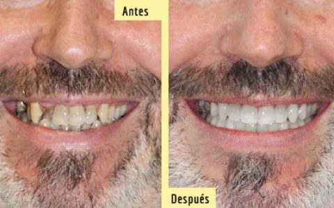 Antes y después de Ortodoncia Zafiro