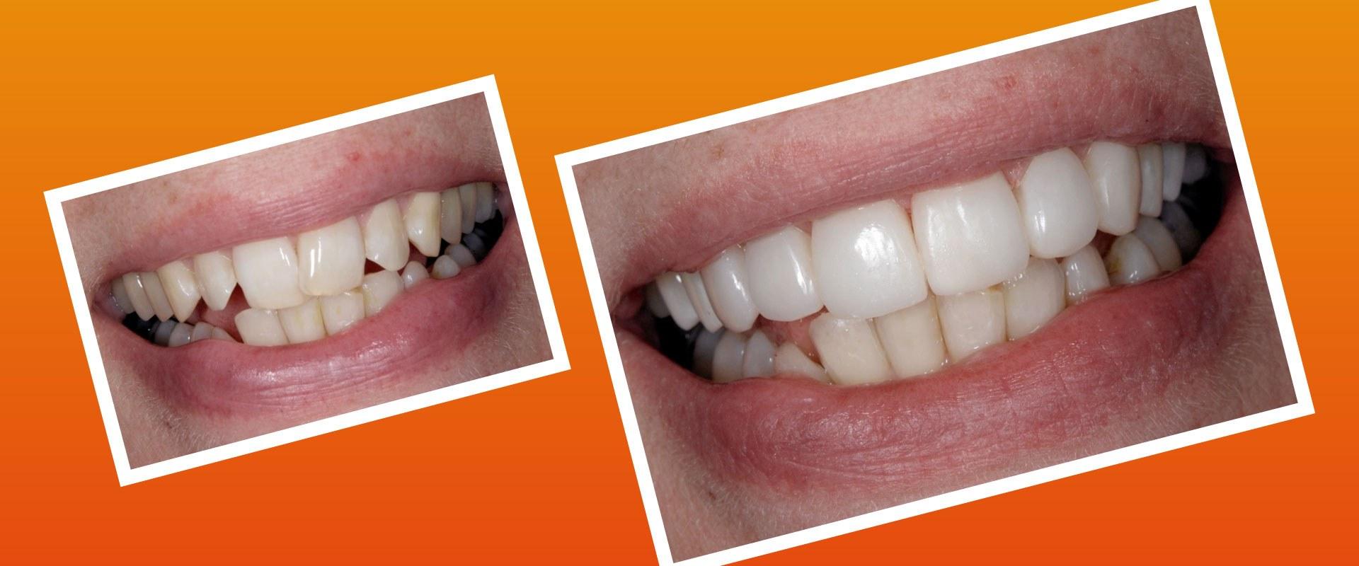 Antes y después de Carillas componeer. Sonríe tu clínica dental en Barcelona