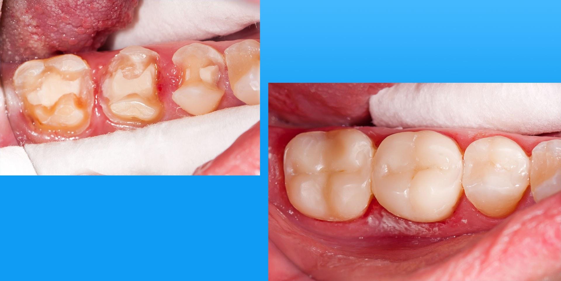 Antes y despues de una intervencion de odontología conservadora. Sonríe, tu clínica dental en Barcelona