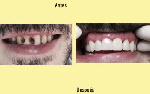 antes y después de una ortodoncia con Sonríe tu clínica dental de Barcelona