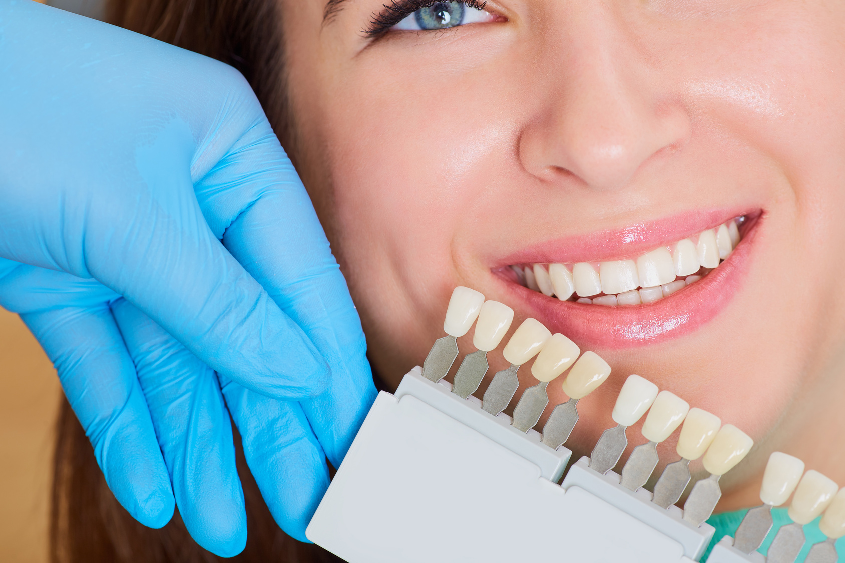 Cuándo se aconseja utilizar implantes dentales