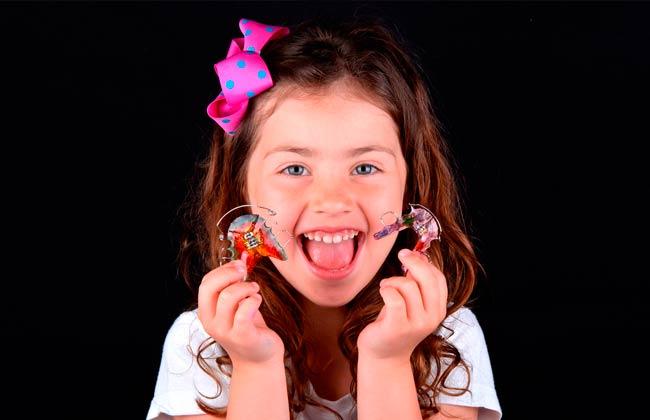 expansores dentales infantiles