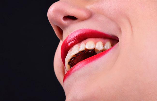 ortodoncia-lingual