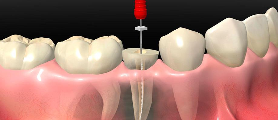 endodoncia en barcelona