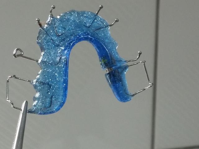 aparato ortodoncia lingual