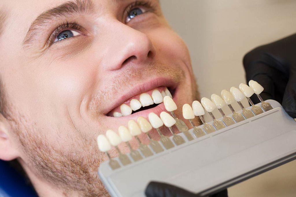 Los peligros de un blanqueamiento dental sin control