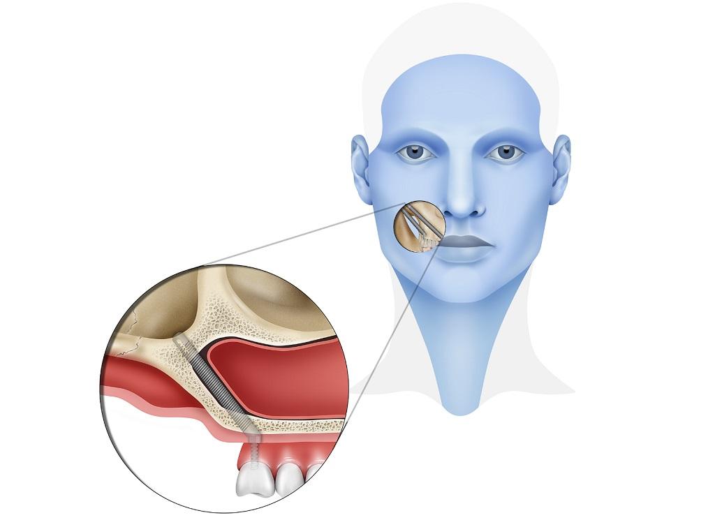 Quiénes deberían utilizar implantes cigomáticos